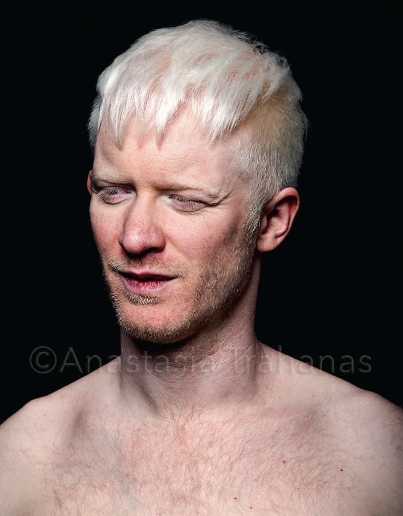 Spankwire Squirt Pictures Of Naked Albinos